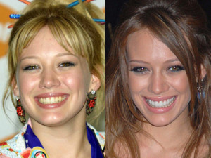 Hilary-Duff-teeth-before-after-cosmetic-dentistry