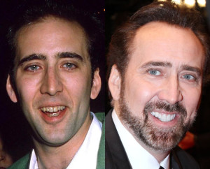 nicolas-cage-teeth